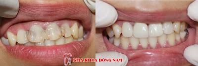 bọc răng sứ có tháo ra được không -3