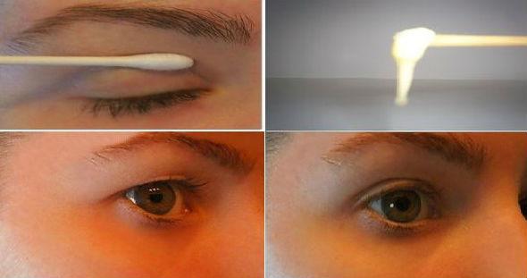 Cara Mengencangkan Kelopak mata yang Kendur dengan Cara Alami