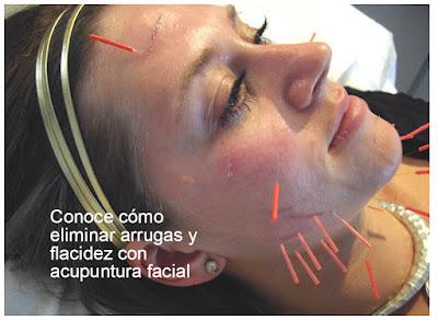 Elimina Arrugas Y Flacidez Con Acupuntura Facial