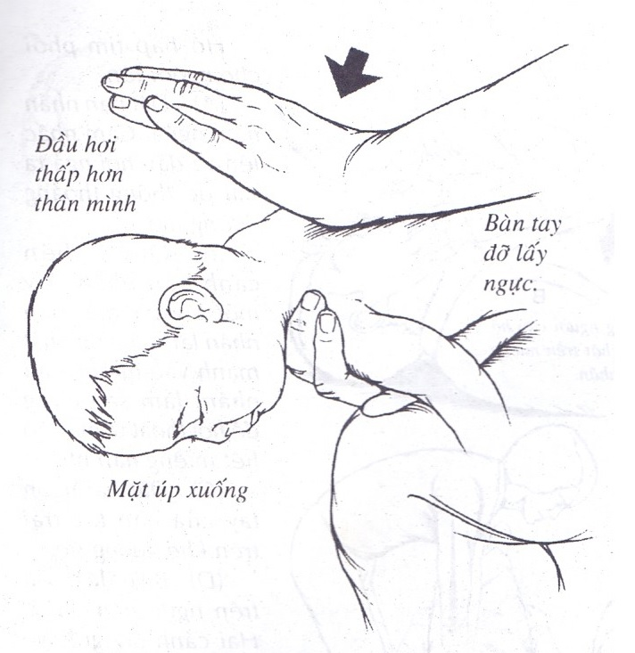 Phương pháp chữa nghẹn cho bé