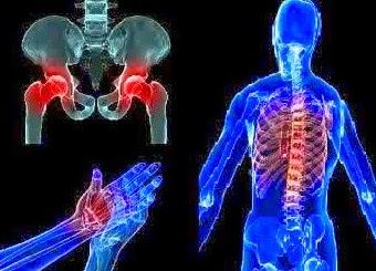 6 Cara Alami Mencegah Osteoporosis