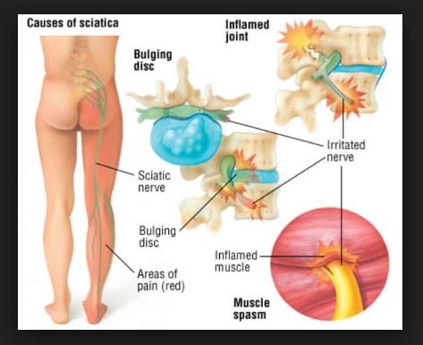 Causes of Nerve Pain