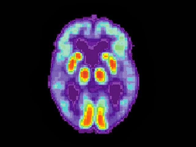 PET scan de um cérebro humano com Alzheimer