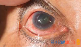 Recognize Glaucoma, Eye Disease That Causes Vision Disorders 100%
