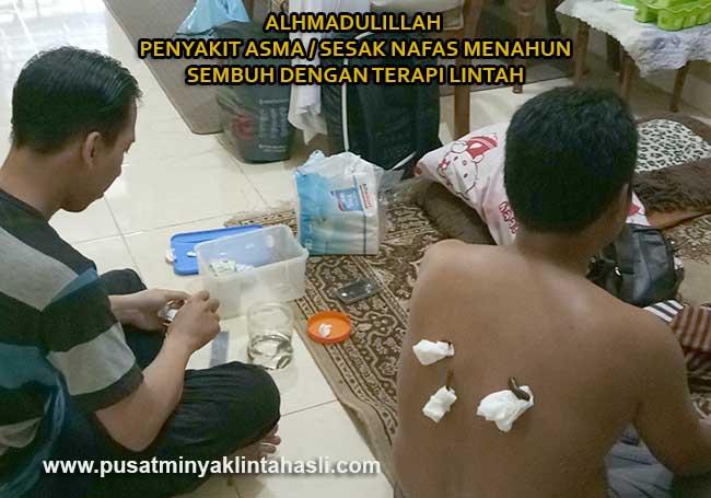 Penyakit asma sesak nafas sembuh dengan terapi lintah