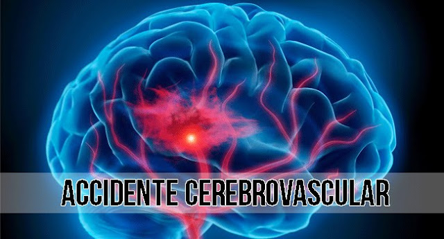 accidente cerebrovascular  acv