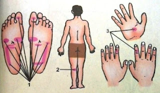Gambar Titik Refleksi untuk Diare