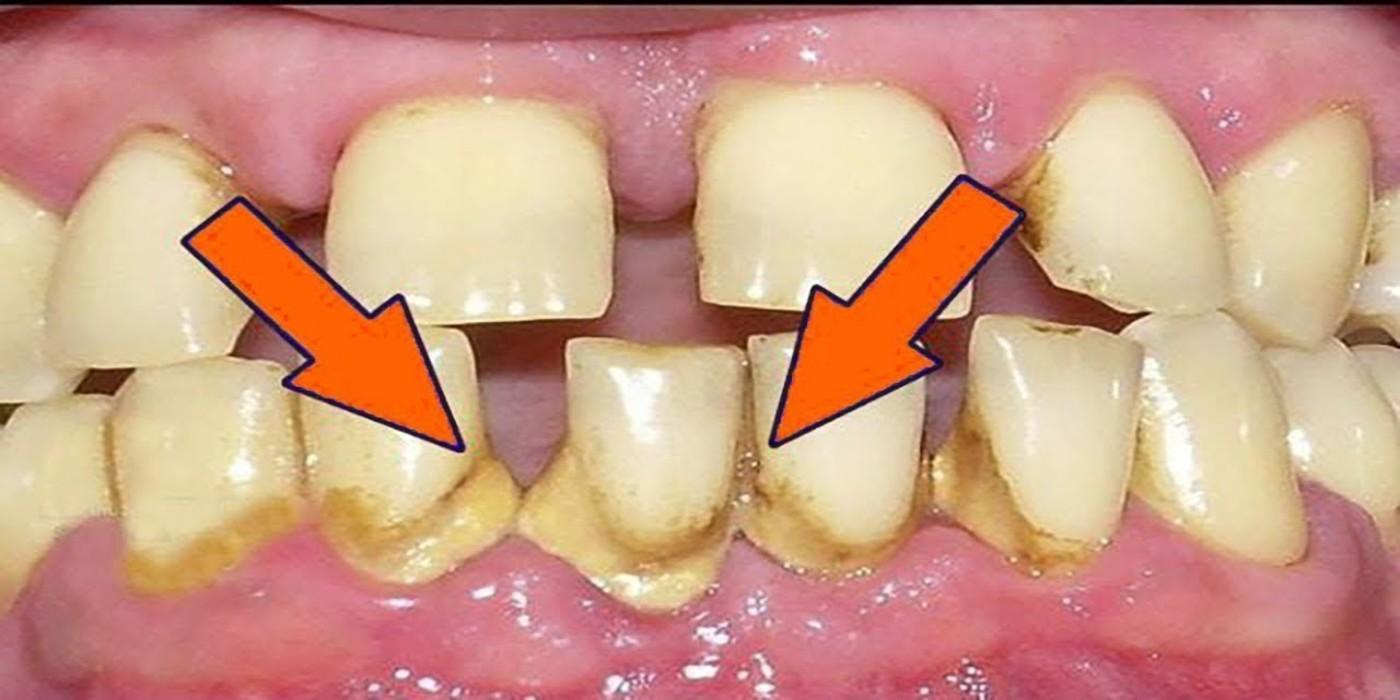 como quitar el sarro delos dientes los dentistas