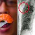 ALERTA: Homem tem o corpo todo infectado de vermes após comer sushi contaminado