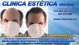 injertos capilar MARBELLA Clínica Estética  trasplante pelo mujeres  y para hombres o Marbella y en Málaga: Te proponemos la mayor calidad de nuestroservicio con los mejores