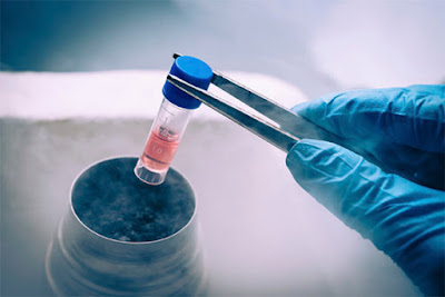 3 Step Guide to prepare for Frozen Embryo Transfer