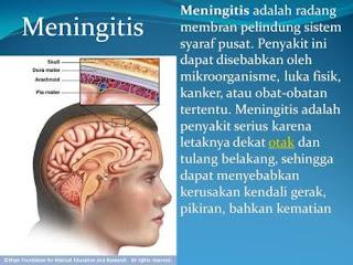 Vaksin Meningitis