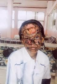 WASPADA !!!!! Bahaya Krim Pemutih Wajah Menyebabkan Kanker ...