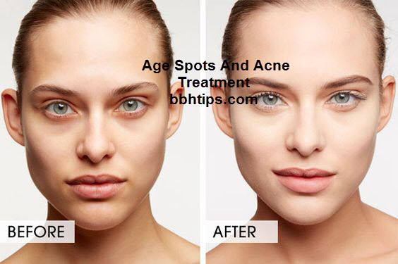 Age Spots And Acne Treatment