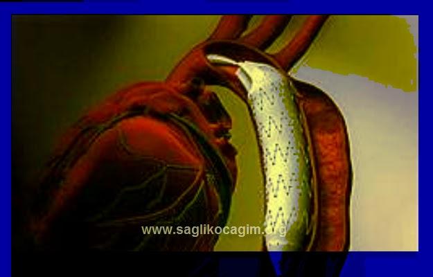 Hamilelikte aort diseksiyonu