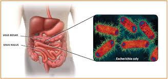 Manusia dengan bakteri usus halus