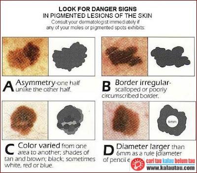 kalautau.com - pertumbuhan dan perkembangan abnormal dari sel-sel pigmen di bawah kulit yang lebih dalam