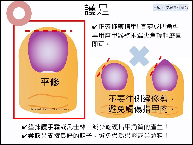 接受化療、標靶治療時,皮膚照護很重要!-預防甲溝炎