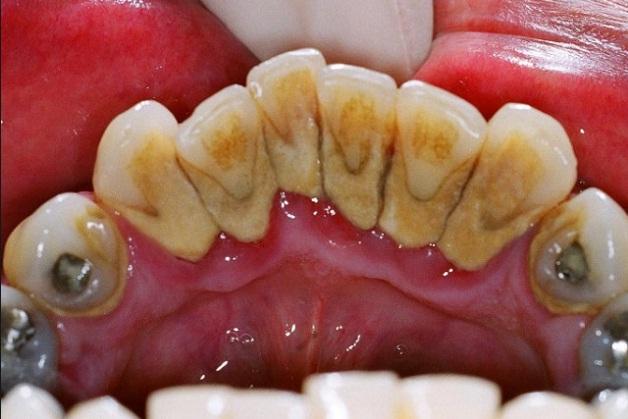 Cara Mudah Menghilangkan Karang Gigi