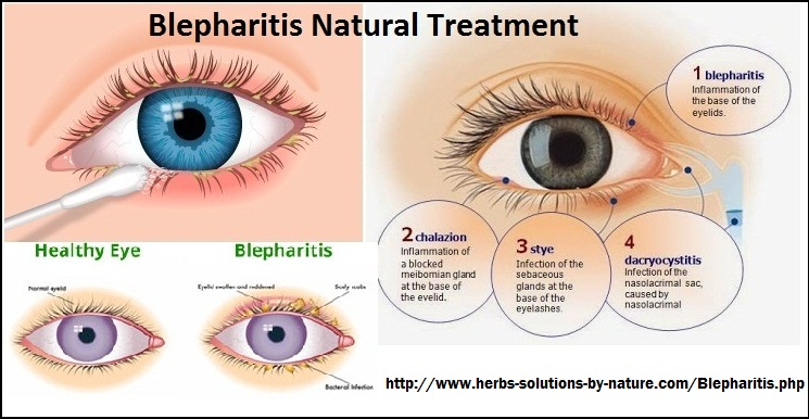 4 Home Base Natural Treatments for Blepharitis