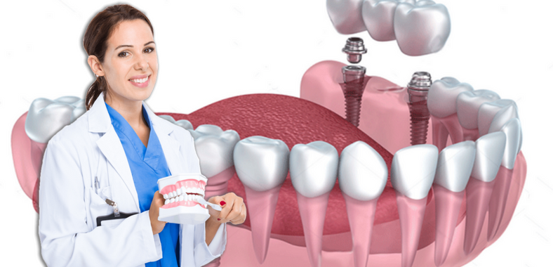 What Kind of Implant Procedure does A Wimbledon Dentist Follow?
