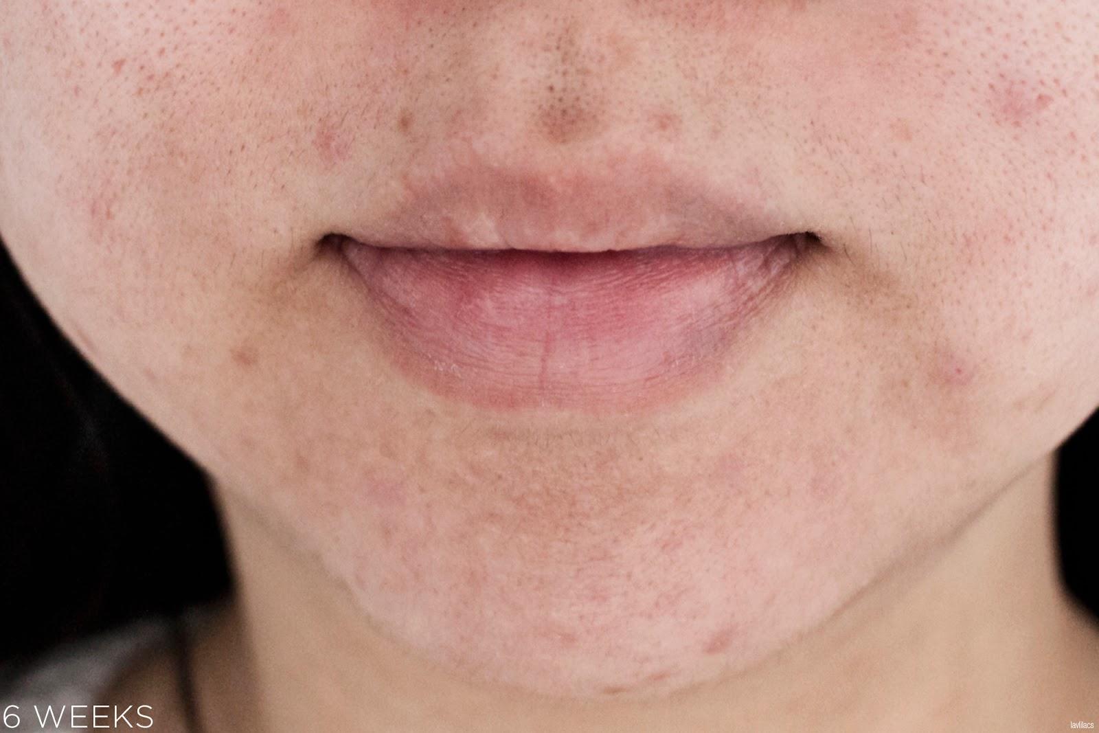 tria Hair Removal Laser Facial Hair 6 Weeks Closeup