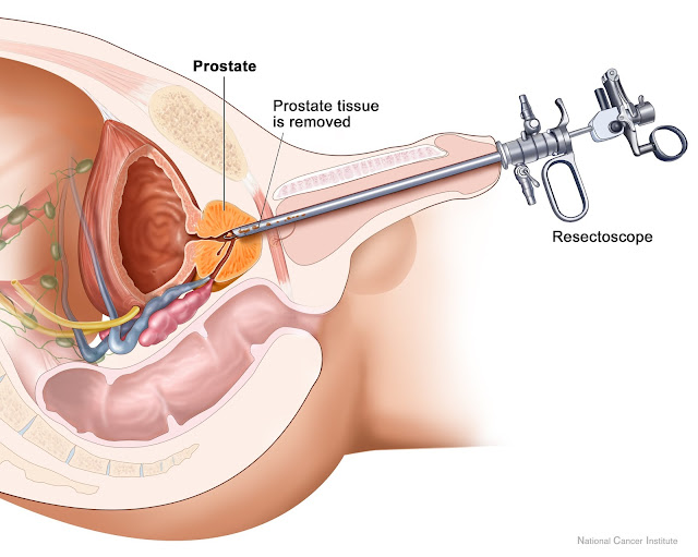 Tratamiento de la próstata