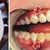 Esta é a receita que está a incomodar os dentistas: Aprenda a eliminar o tártaro sozinho sem ir ao médico!