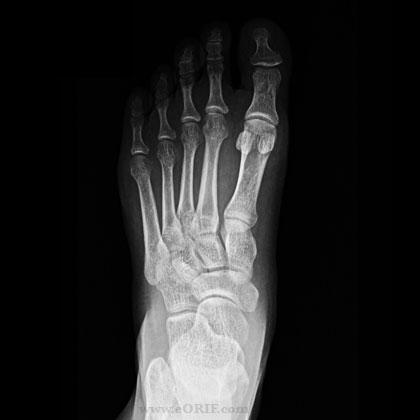 tasteandsee: Broken Foot (or Complain, Complain, Complain)