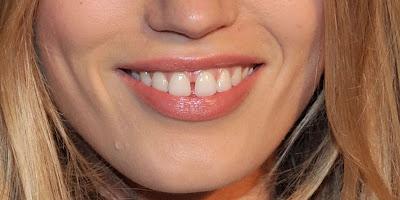 क्या कहता है आपके दांतों का गैप