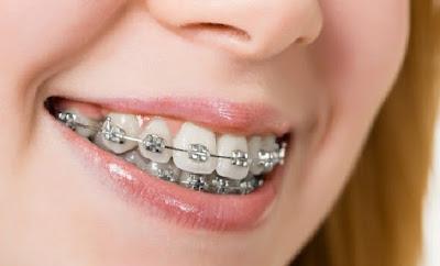 Bahaya Pemakaian Kawat Gigi Yang Sebaiknya Anda Ketahui