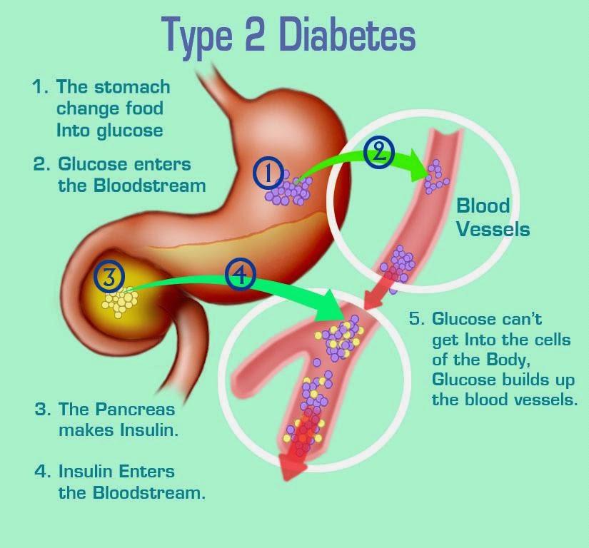 diabetes melitus atau kencing manis tipe 2
