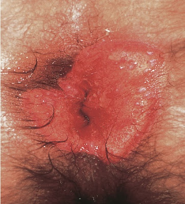 Chronic erosive perianal herpes of several weeks duration in a man with AIDS
