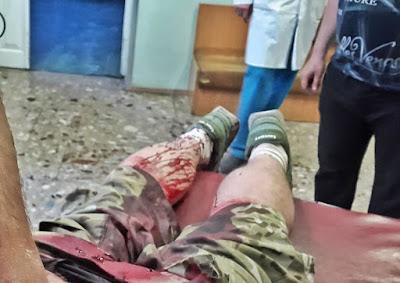 """""""Вдарили ножем в спину і хотіли добити молотком"""", - у столиці напали на """"кіборга"""""""