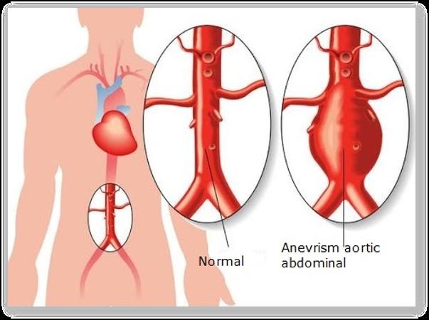 Tipuri de anevrisme, diagnosticul si tratamentul anevrismelor