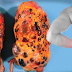 Seriously? Experts Say, These Bad Habits Can Damage Your Kidneys!
