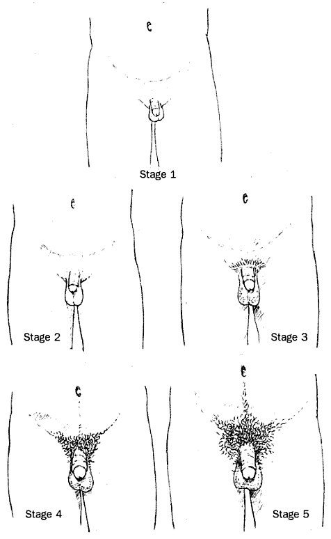 Penis Stages 52