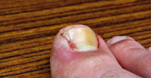 How To Get Rid Of an Ingrown Toenail?