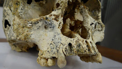cráneo de una mujer que murió hace 3.700 años