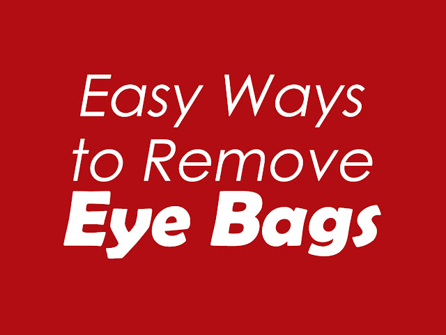 Easy Ways to Remove Dark Circles and Eye Bags
