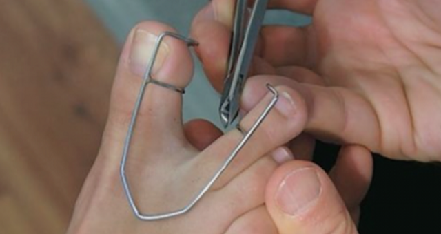 Verifica in mod constant pielea dintre degetele de la picioare; motivul e mai mult decat ingrijorator!