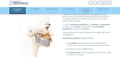Orthognathic Surgery illustrations. My last work