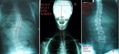 脊椎側彎, 脊椎側彎矯正治療, 脊椎側彎檢查, 脊椎側彎矯正運動, 脊椎側彎 物理治療, 脊椎側彎矯正成功案例