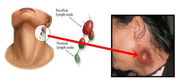 5 Bahan Alami Obat Kelenjar Getah Bening Bengkak / Obat ...
