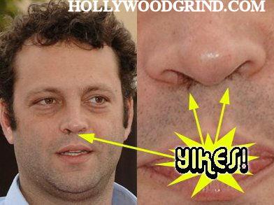 long nose hair gallery