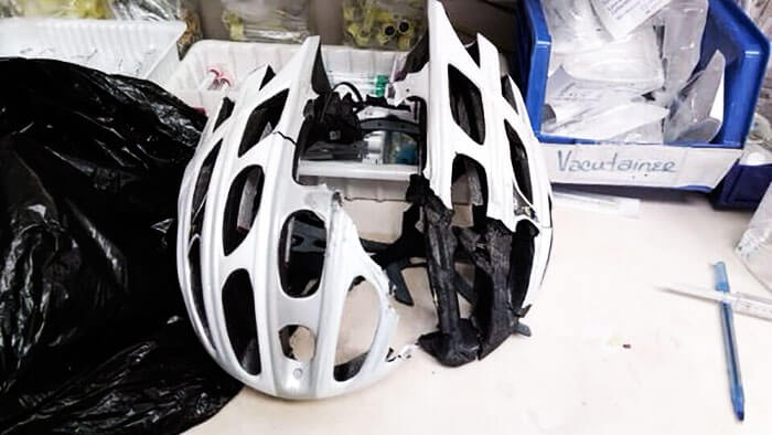 15 Reasons Why Wearing A Helmet Is Always A Good Idea - No Doubt This Helmet Saved A Friend From Serious Head Injury Or Death