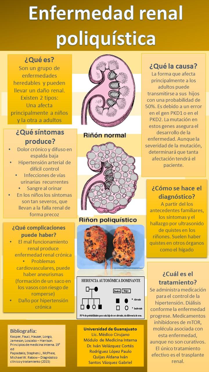Enfermedad renal poliquística e hipertensión