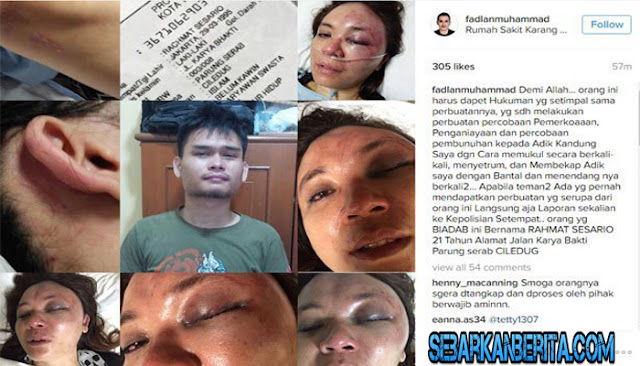 TRAGIS! Wanita Ini Disekap, Disetrum, Dianiaya dan Nyaris Diperkosa