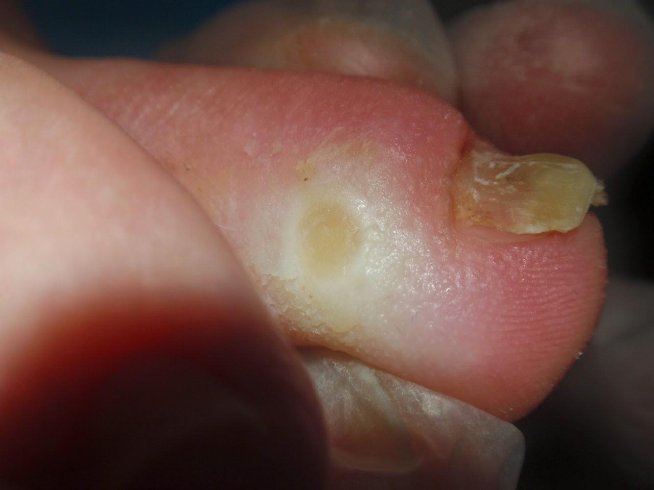 Como curar un ojo de pollo en el dedo del pie