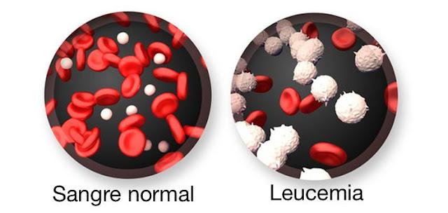 Todo lo que debes saber sobre la leucemia.